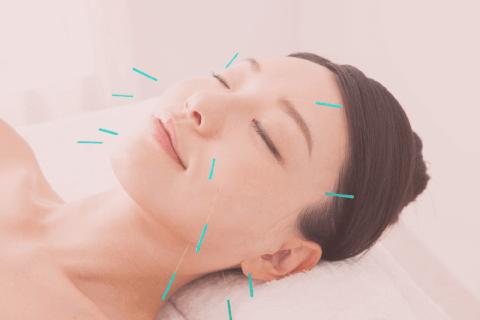 高崎にあるルクレアのニキビ鍼灸の特徴