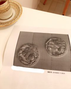 M様 胚盤胞写真